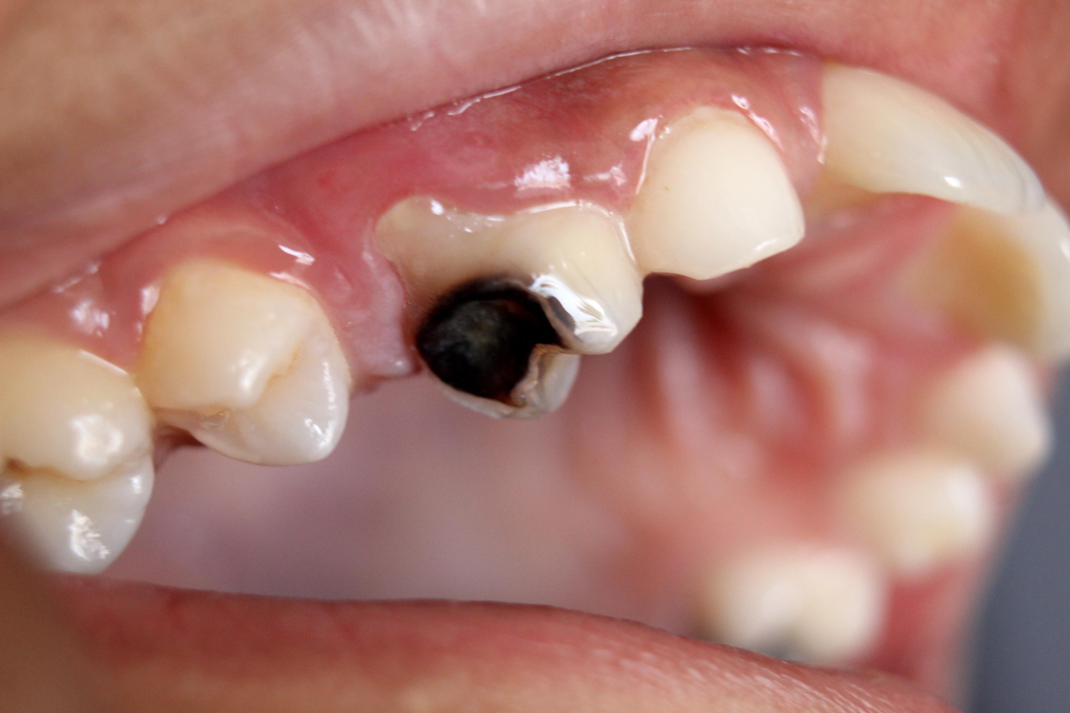 https-::upload.wikimedia.org:wikipedia:commons:2:2f:Dental_Caries_Cavity_2