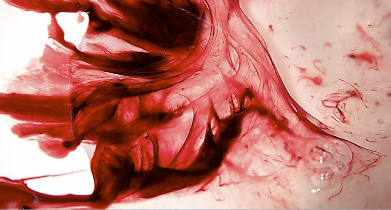 "B0010047 Menstrual blood, artwork title ""Red Dress 1"""