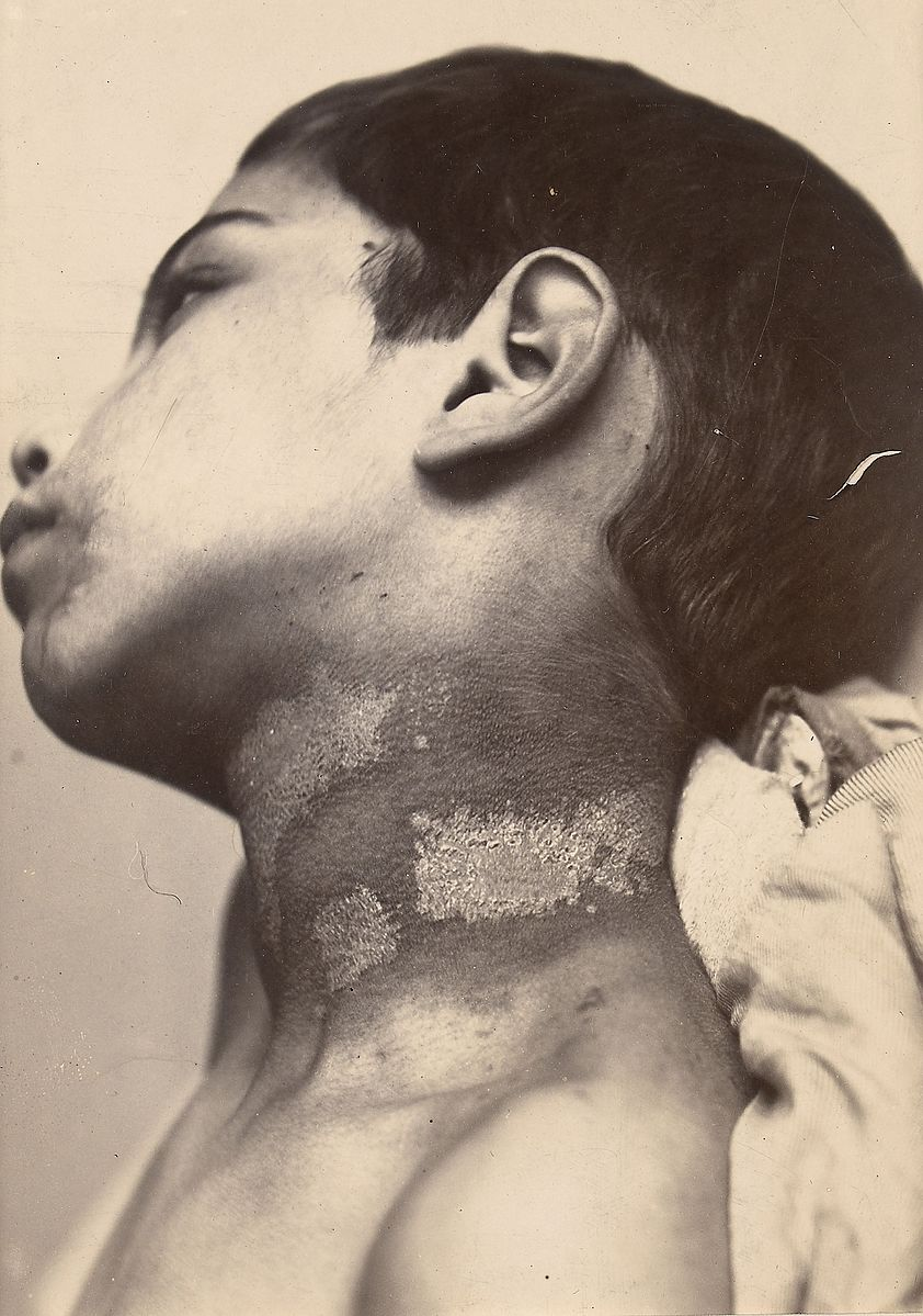 https-::commons.wikimedia.org:wiki:File-Arsenical_pigmentation_of_the_skin_Wellcome_L0062902.jpg